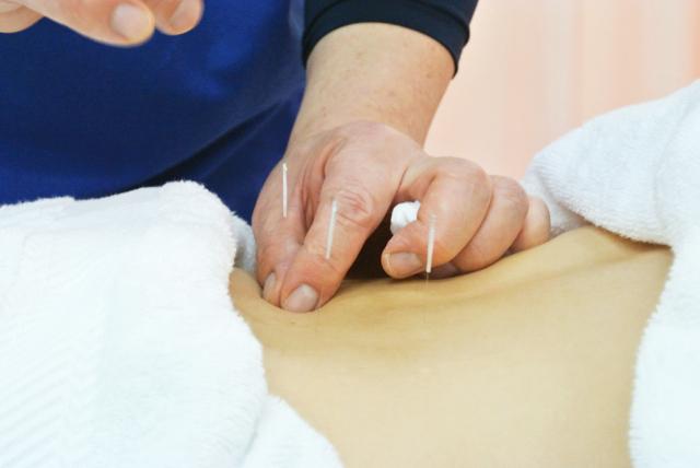 痛みが強い場合は鍼で鎮める